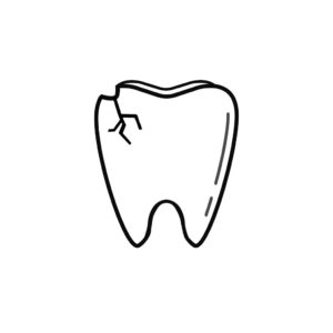 Seattle WA Dentist | I Chipped a Tooth! What Can I Do?